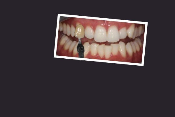 B1 Teeth Whitening