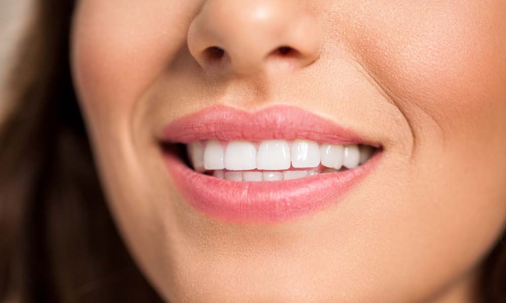 Closing tooth gaps with Invisalign
