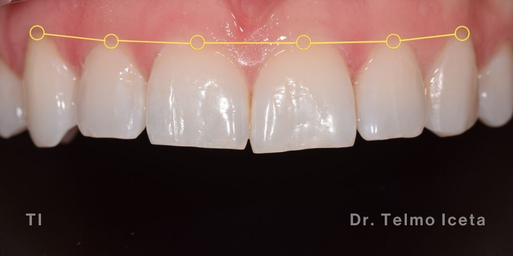 Patient smile aligned with Invisalign