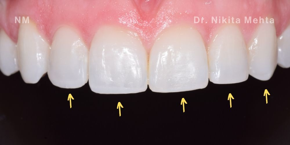 Patient smile after Invisalign, tooth bleaching and composite bonding