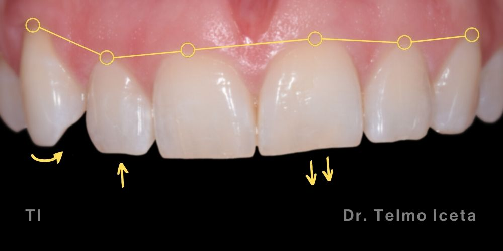 Patient smile before Invisalign treatment, bleaching and composite bonding