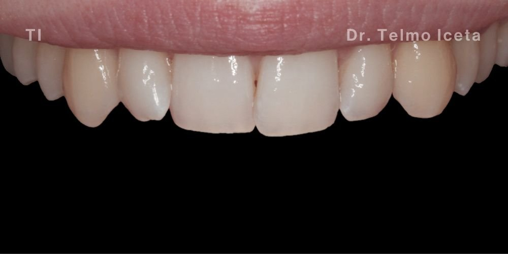 Patients smile before Teeth Whitening and Invisalign in Pinner
