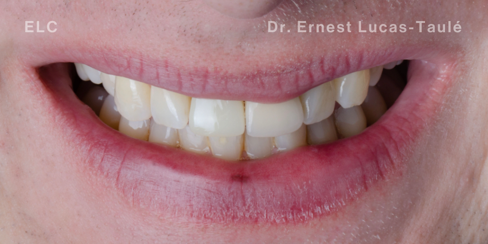After implant and bone grafting treatment