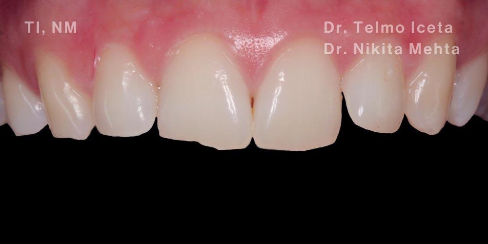 A brides smile before dental bonding treatment