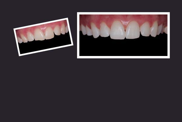 Bridal Tooth Bonding